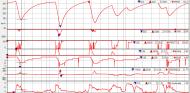 Análisis numérico de la clasificación del GP de Austria F1 2020 - SoyMotor.com