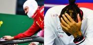 Las manos de los pilotos revelan lo duro que fue el GP de Turquía - SoyMotor.com